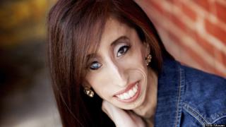 「世界で1番醜い女」と罵られた右目を失明した25歳の女性が語るマイナスをプラスに変える方法