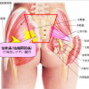 難攻不落の「仙骨痛(仙腸関節痛)」の遠隔浄化