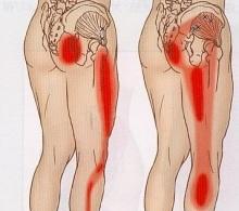 坐骨神経痛の浄化